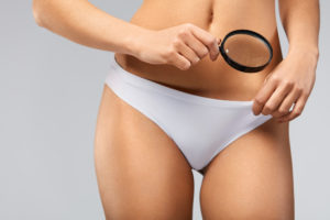 permanent hair removal St Catharines