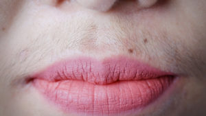 upper lip hair removal st. catharines